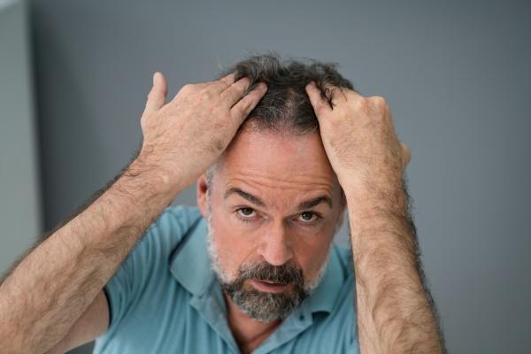 homem verificando sua queda de cabelo