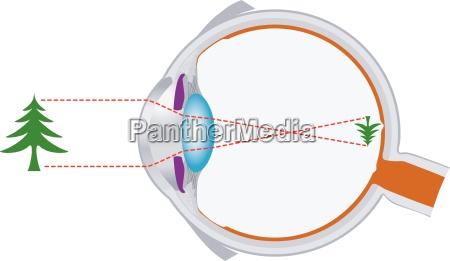 eyeball optics and vision lens system