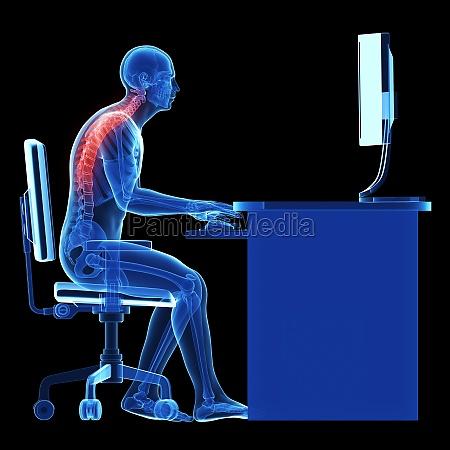 3d mostrou ilustracao medica postura