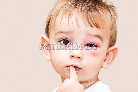 liberado risco olho orgao bebe infantil