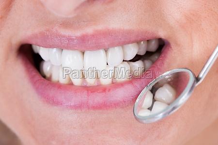 paciente de exame do dentista