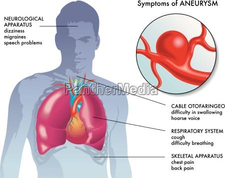 sintomas de aneurisma