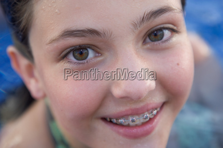 young girl smiling with braces in
