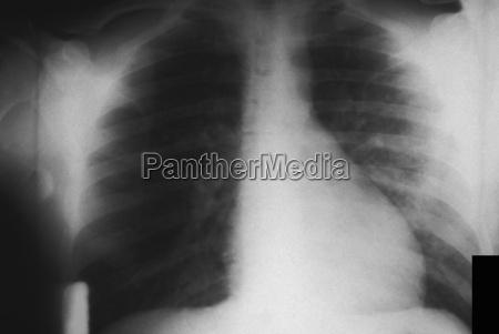 close up peito horizontalmente acidente osso